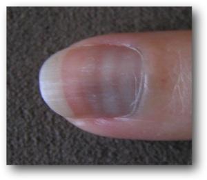 thallium nails